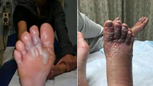 Couple gets parasitic hookworms in feet after walking on